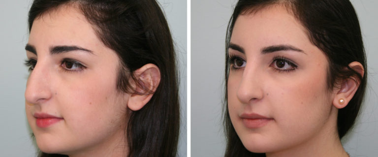 Skin Care Procedures Should you Follow After Undergoing Rhinoplasty