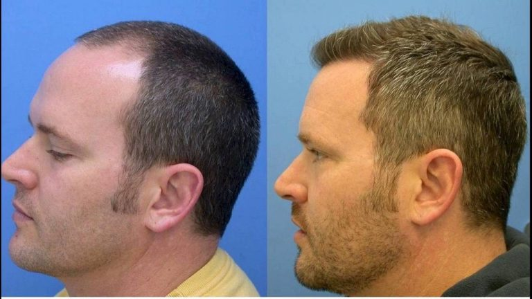 The Most Important Benefits of Getting a Hair Transplant Done